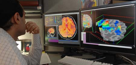 Functional magnetic resonance imaging. ¿Neuromarketing?